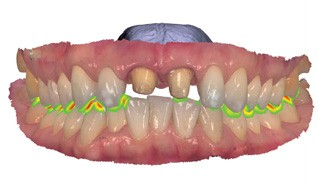 Validate occlusal space