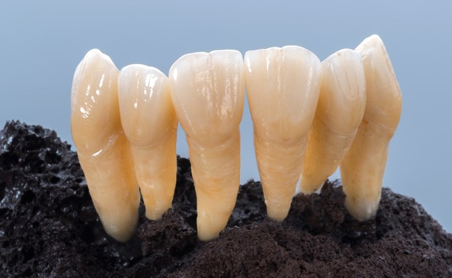 dima Mill Zirconia 16+ shades